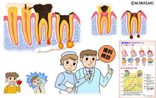 歯と歯ぐきを守る新常識中面(ソフトバンク)